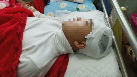 Nam sinh bị đánh vỡ sọ não: Bất ngờ bản tường trình