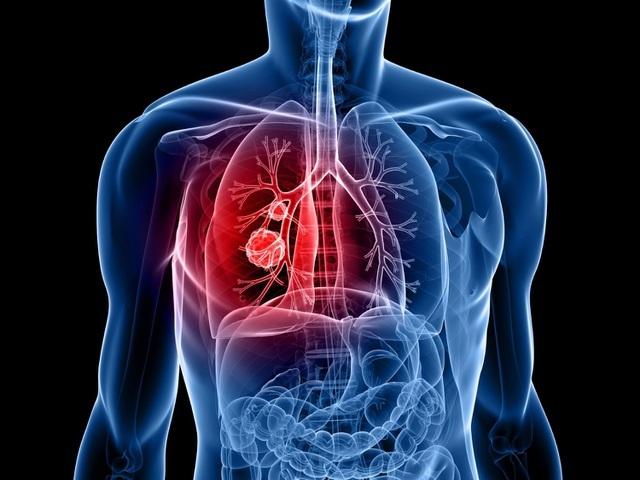 Ung thư phổi và các vấn đề bạn không nên bỏ qua