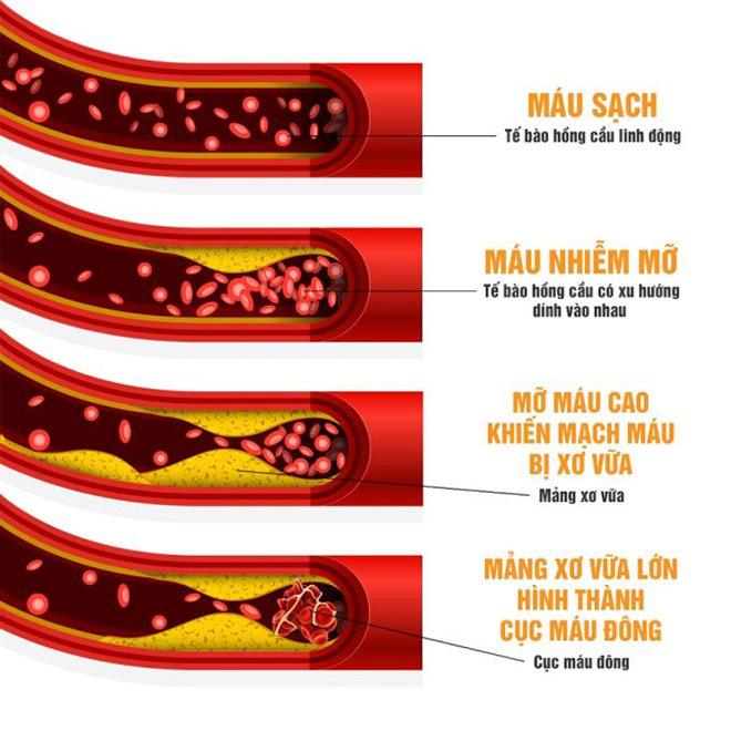 Nguy cơ mỡ máu gây đột quỵ sau tuổi 40 vào mùa lạnh!