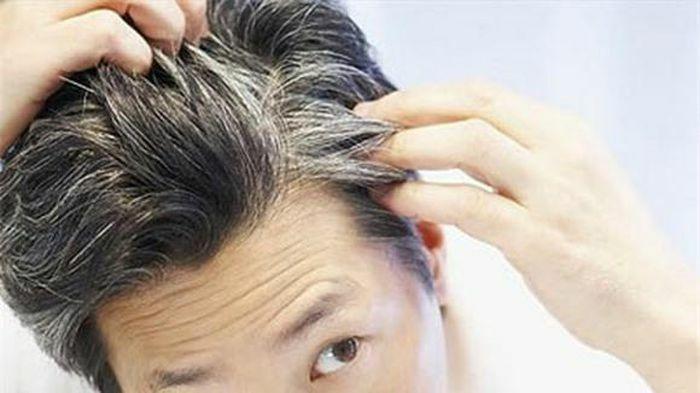 Cách chữa tóc bạc sớm đơn giản mà hiệu quả không ngờ chỉ chưa tới 1 ngàn đồng