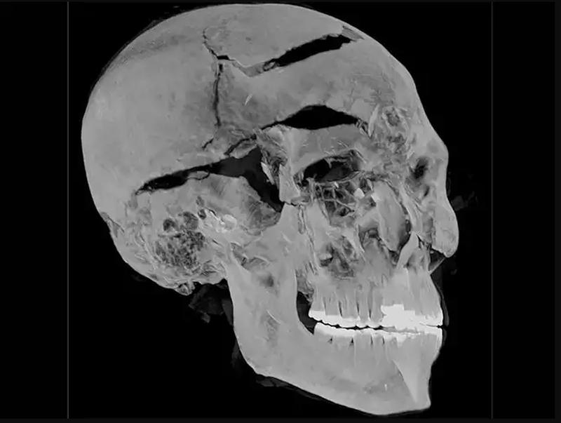 Giải mã thành công cái chết tàn khốc của pharaoh sau 3.600 năm