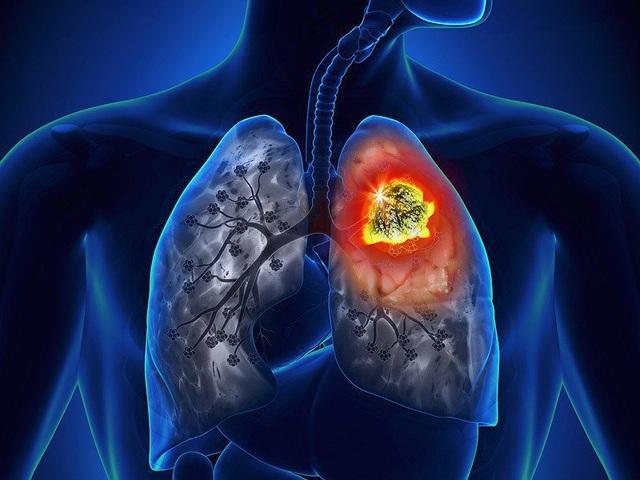 Triệu chứng hay gặp nhất của ung thư phổi