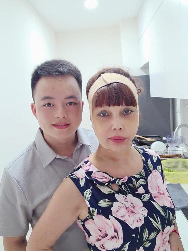 Sau sự cố méo miệng, 'cô dâu' Cao Bằng tự tin khoe gương mặt mới khác lạ