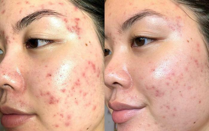 4 sai lầm phổ biến khi skincare nhiều bước khiến da nhanh chóng bị xấu đi