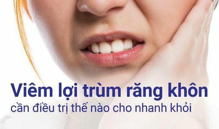 Viêm lợi trùm răng khôn cần điều trị thế nào cho nhanh khỏi?