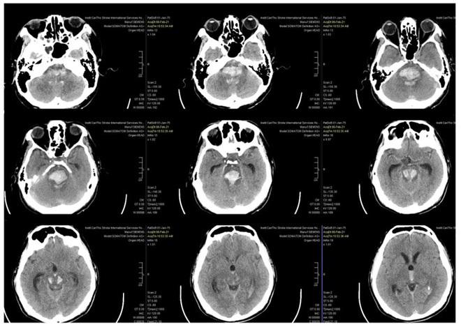 Cảnh báo nguy cơ đột quỵ gia tăng dịp Tết: 4 chữ cái báo hiệu triệu chứng đột quỵ bạn cần biết