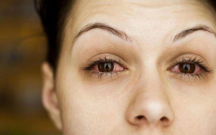 Phát hiện biến chứng nguy hiểm trên mắt ở bệnh nhân Covid-19