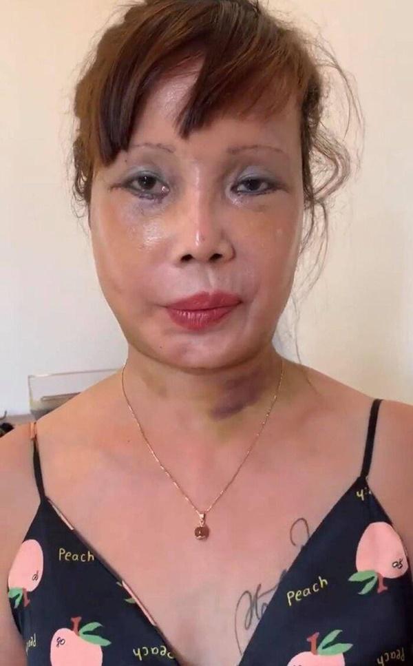 Diện mạo 'mới toanh' của cô dâu 64 tuổi sau nửa năm dao kéo