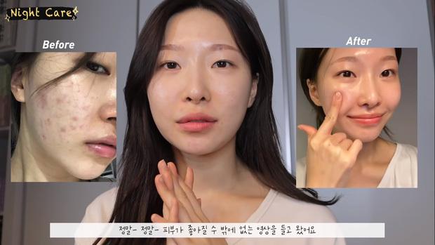 MUA người Hàn chia sẻ loạt sản phẩm đỉnh cao giúp làn da thâm mụn xấu xí trở nên căng mướt như phủ sương