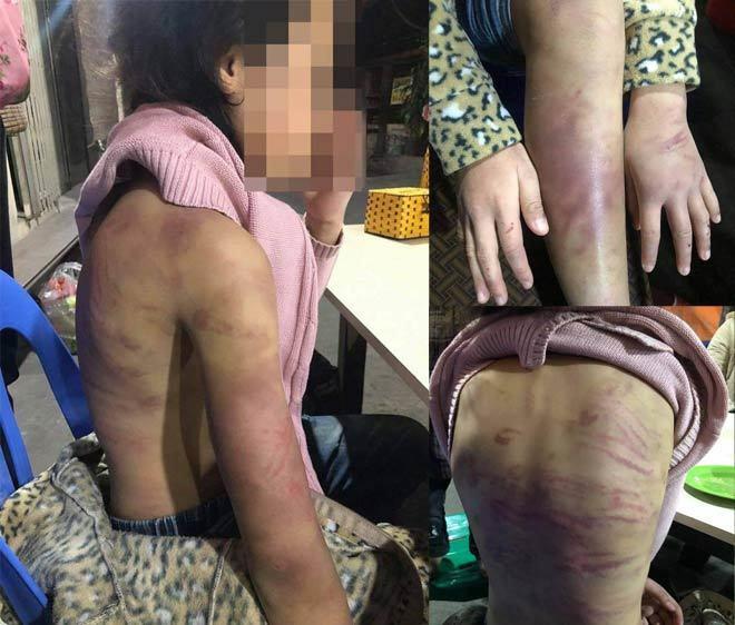 Bé gái nói về việc bị mẹ trói tay chân đánh đập ở Hà Nội