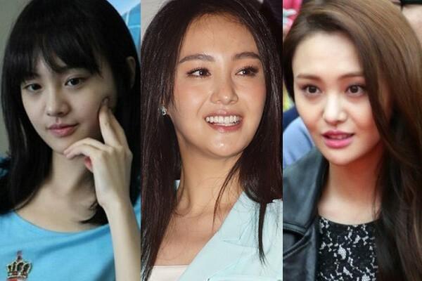 Trịnh Sảng và những mỹ nhân Hoa ngữ thừa nhận thẩm mỹ hỏng