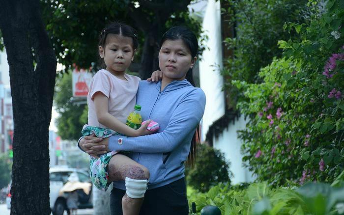 Bé gái 8 tuổi trải qua 19 lần phẫu thuật khi mắc căn bệnh quái ác