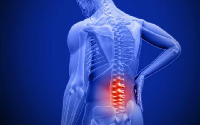 Thoái hóa cột sống là gì? Nguyên nhân, triệu chứng và cách khắc phục