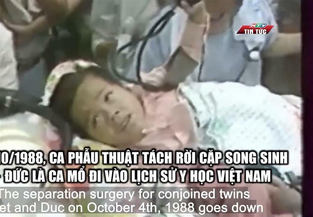 Cặp song sinh dính liền đầu tiên ở Việt Nam sống thế nào sau 33 năm phẫu thuật?