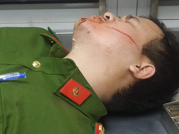 Đà Nẵng: 2 công an bị chém khi khống chế đối tượng đòi giết người, đốt nhà