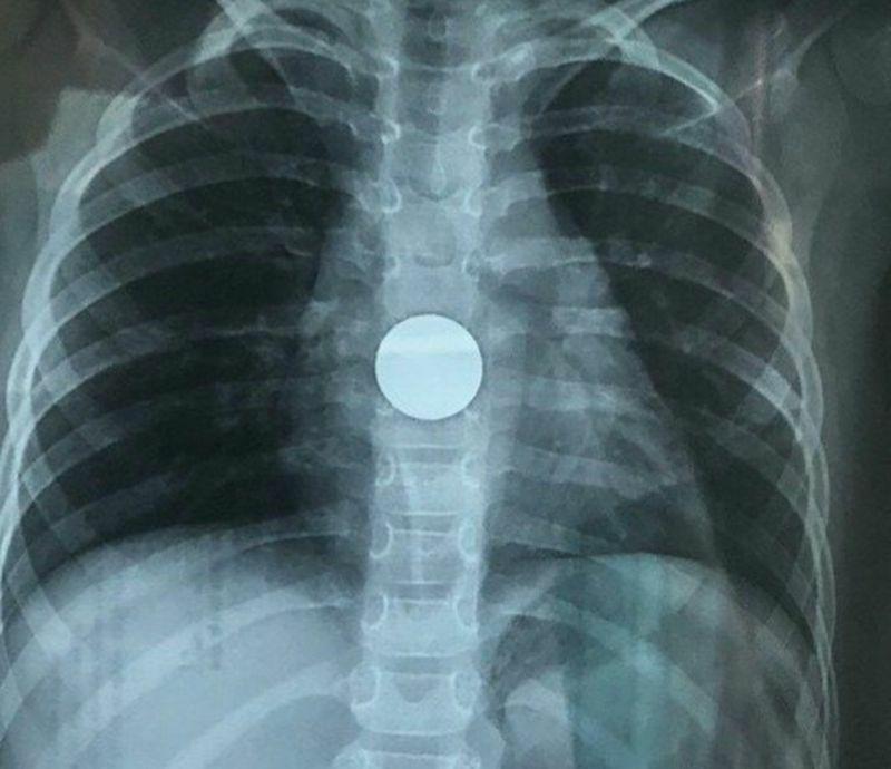 Khẩn cấp nội soi gắp đồng xu ra khỏi ổ bụng bé gái