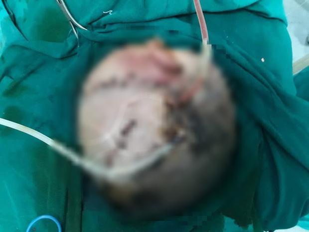 Bé trai hơn 4 tuổi bị chó nhà cắn tổn thương nặng vùng đầu
