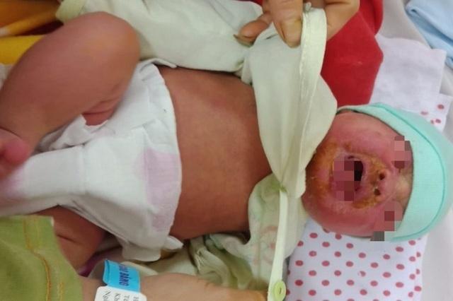 Tắm bằng nước lá, bé 20 ngày tuổi phải nhập viện vì nhiễm độc