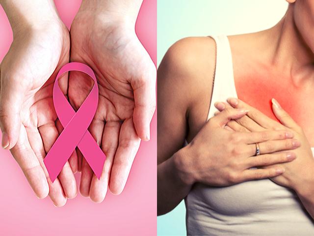 6 dấu hiệu cảnh báo 2 loại ung thư hàng đầu ở phụ nữ