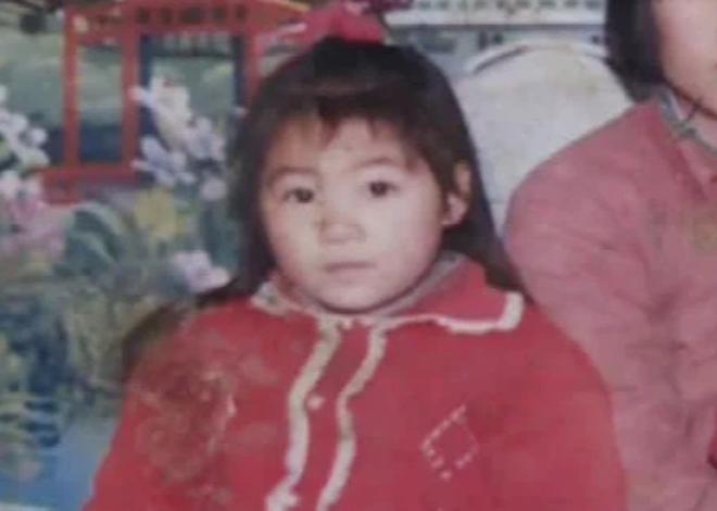 Ăn mía lúc 5 tuổi, cô gái Trung Quốc 30 năm sống trong tình trạng dị dạng xương khớp: Đây là loại mía bạn tuyệt đối đừng nên mua