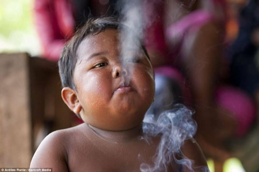 Sau 10 năm, bé trai 2 tuổi từng hút 40 điếu thuốc mỗi ngày giờ ra sao?
