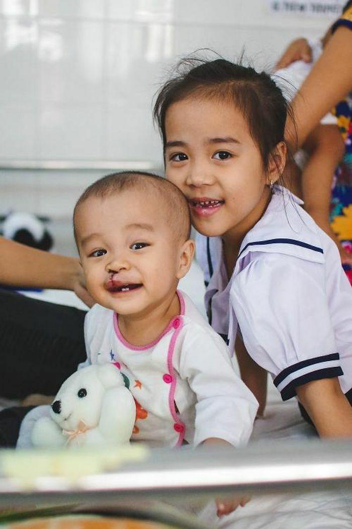 Tháng 3: Operation Smile Việt Nam sẽ phẫu thuật miễn phí cho 200 trẻ em dị tật bẩm sinh hở môi, hàm ếch