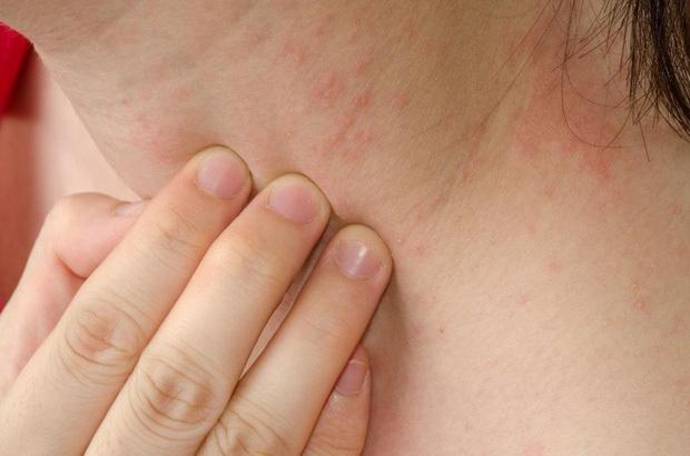 Cô gái 32 tuổi đột nhiên bị mẩn ngứa khắp người, đi khám mới biết đã mắc ung thư gan