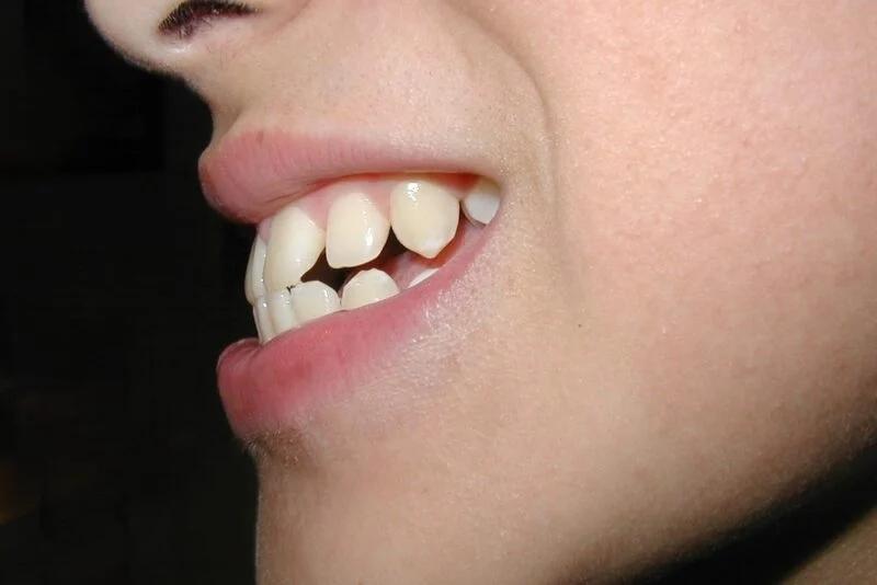 Phụ nữ sở hữu 3 tướng răng này chứng tỏ số khổ, hay gặp thị phi