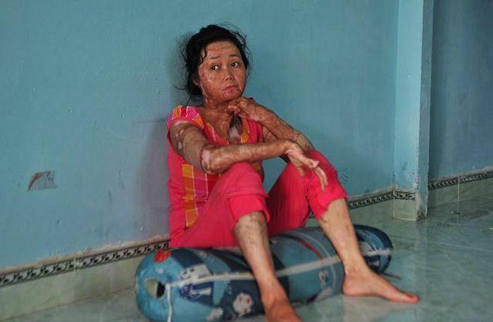 Nỗi đau dai dẳng của người vợ bị chồng tẩm xăng thiêu sống, dùng hết sức lực để cứu hai con