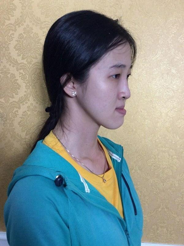"""Không dám yêu ai vì cằm bồ nông, cô gái Sài Gòn quyết """"lột xác"""" thành mỹ nhân"""