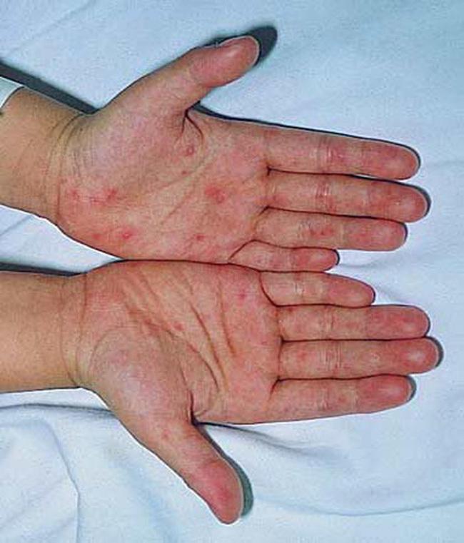 Bé 19 tháng tuổi tử vong nghi do tay chân miệng: Những biến chứng nghiêm trọng, cách nhận biết, điều trị bệnh cha mẹ cần nắm được