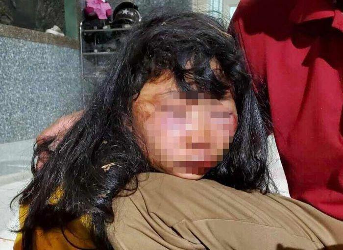 Sức khỏe nữ sinh lớp 6 bị đánh trên đường đi học về