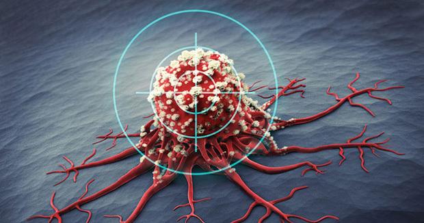 1/6 bệnh nhân mắc ung thư đều do viêm: Nếu 5 vị trí này trên cơ thể bị viêm thì bạn hãy cảnh giác bệnh ung thư đang đến gần