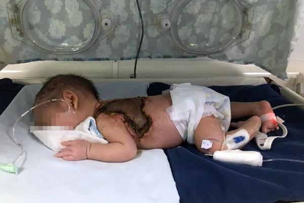 Bé trai bị nhiễm trùng máu do gia đình dùng kim chích mụn