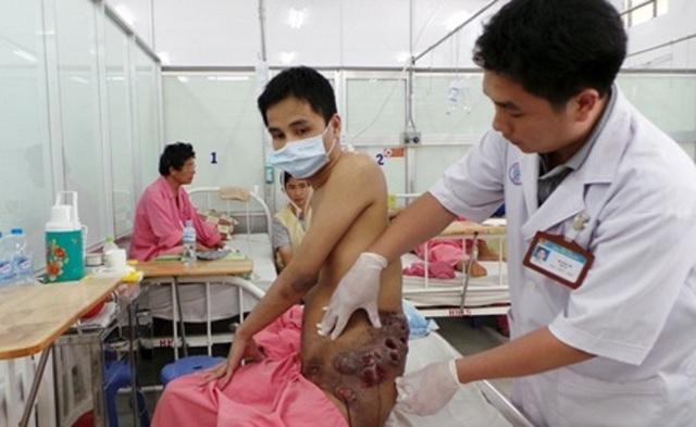 Một bệnh nhân được Bảo hiểm y tế chi trả 38,3 tỷ đồng
