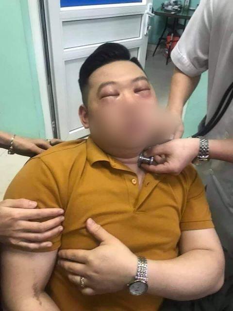 Thái 1 củ hành, thanh niên 25 tuổi bị sốc phản vệ nặng phải vào viện cấp cứu