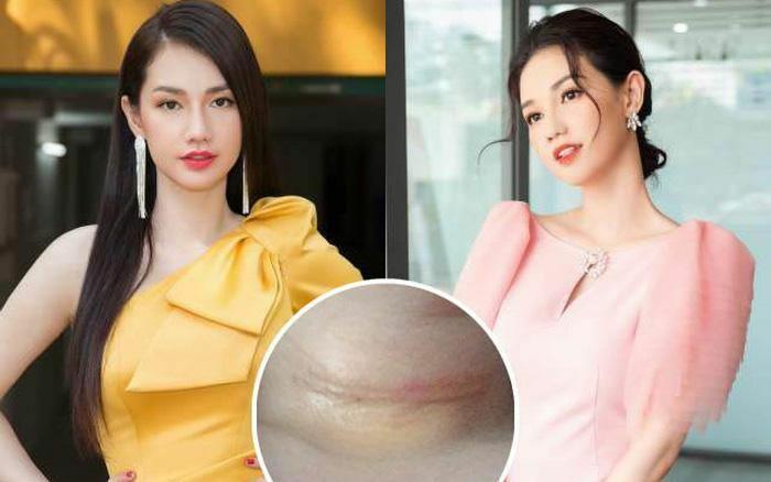 Hình ảnh mới nhất của MC Quỳnh Chi sau ca phẫu thuật vì tế bào ung thư xâm lấn