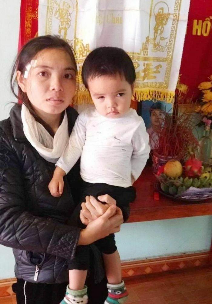 Bé gái 2 tuổi mong được cứu đôi mắt