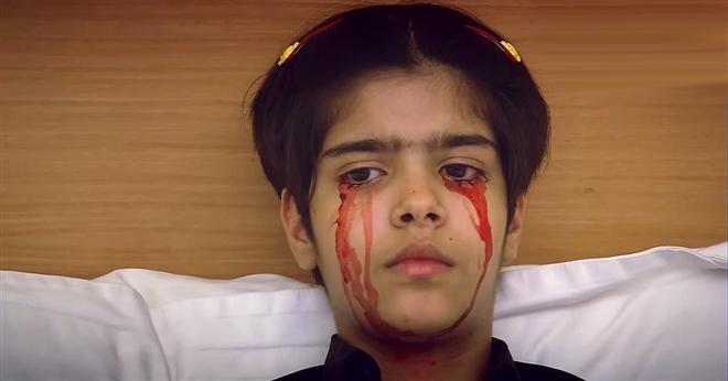 Giải mã bí ẩn 'chứng bệnh' khóc ra máu khiến nhiều người kinh ngạc