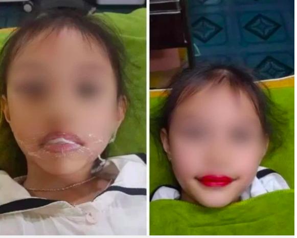 Bác sĩ phẫu thuật tạo hình nói về việc bé 5 tuổi xăm môi: Dùng trẻ con để PR là phản cảm, hậu quả khó lường