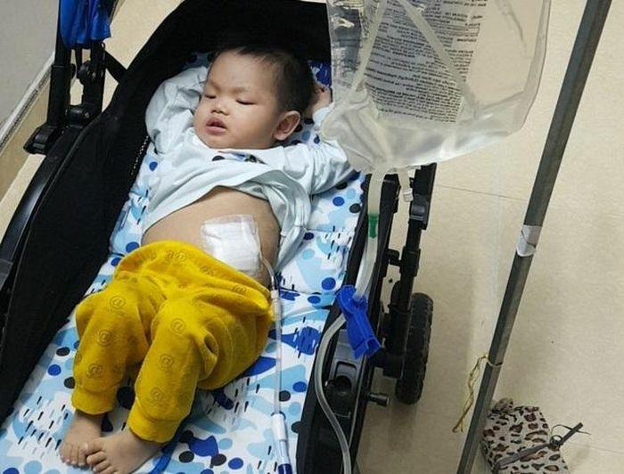 Xót xa bé trai 17 tháng tuổi bị suy thận và bệnh tim