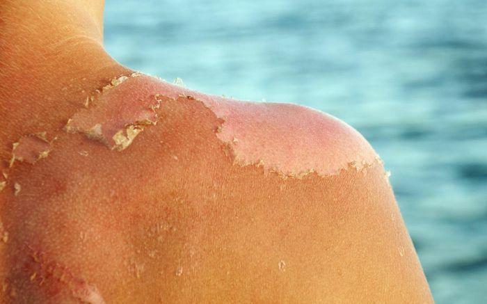 """Chuyên gia cảnh báo da bị """"cháy nắng"""" có thể gây ung thư da"""