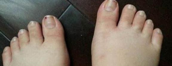 Nếu bốn tình trạng này xảy ra trên bàn chân, đó có thể là dấu hiệu của một căn bệnh nghiêm trọng mà hầu hết mọi người không nhận ra
