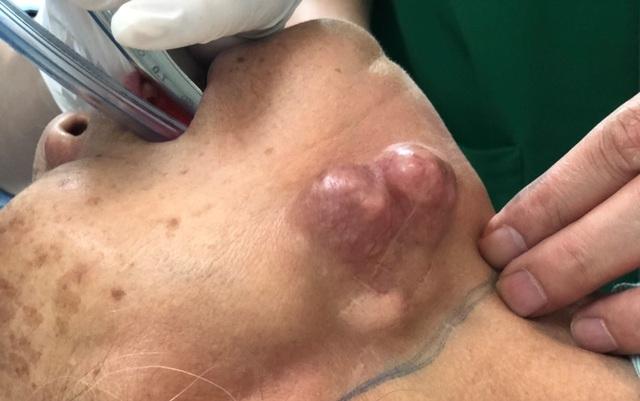 U tuyến nước bọt hơn 10 năm, bệnh nhân vào viện thì đã giai đoạn cuối
