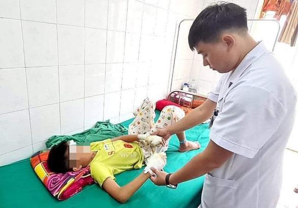 Bé trai 13 tuổi dập nát hai bàn tay vì pin phát nổ