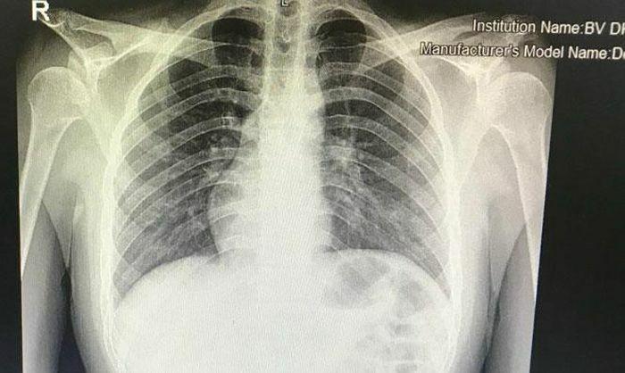 Chàng trai ở Hà Nội có trái tim bên phải