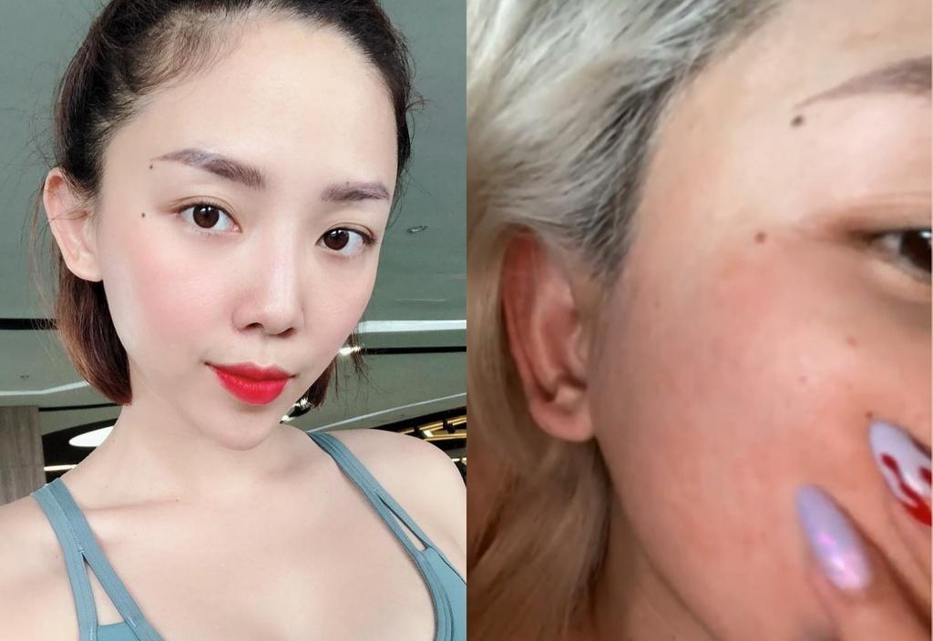 Vì sao Tóc Tiên bị mẩn đỏ khi dùng retinol?