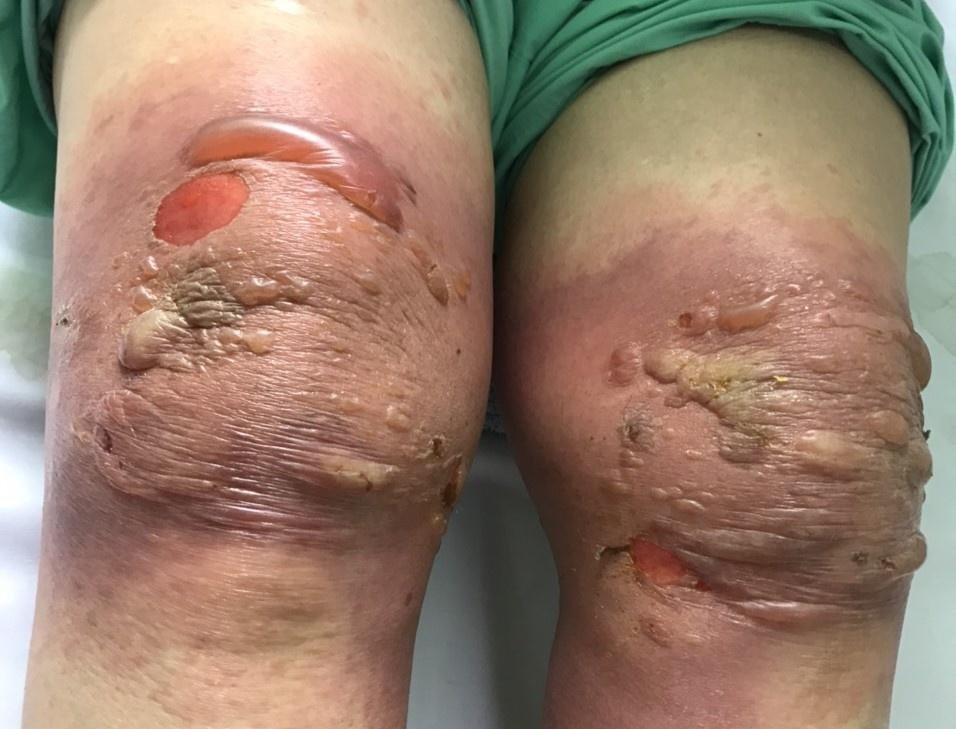 Hái lá xào giấm rồi giã đắp đầu gối trị đau khớp, bệnh nhân phải nhập viện