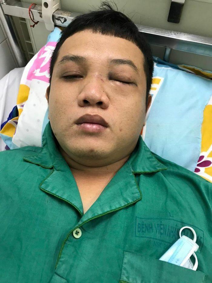 Chào hỏi trong quán nhậu, thanh niên bị 2 cán bộ CSGT đánh nhập viện
