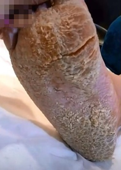 Rùng mình bàn chân như 'đất hạn hán' và pha gọt da chết rơi lả tả